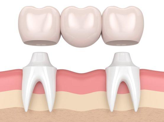 Próteses e implantes dentários: Qual é a diferença?